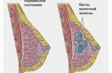 Атипичная киста молочной железы: особенности, признаки, лечение