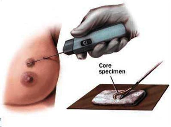 Core биопсия