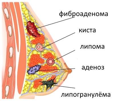 шишки в груди