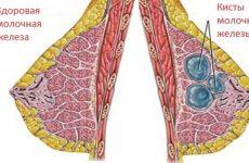 Все о кисте молочной железы: симптомы, виды, диагностика, лечение