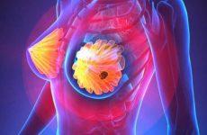 Диффузная фиброзно-кистозная мастопатия: симптомы, формы, диагностика, лечение