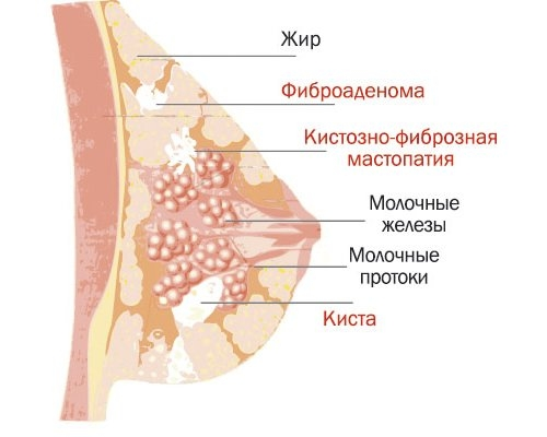 Диффузная фиброзно-кистозная мастопатия