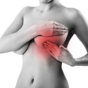 Особенности диффузной мастопатии: причины и лечение
