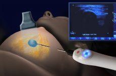 Лечение фиброаденомы молочной железы без операции: малоинвазивные методы и медикаменты