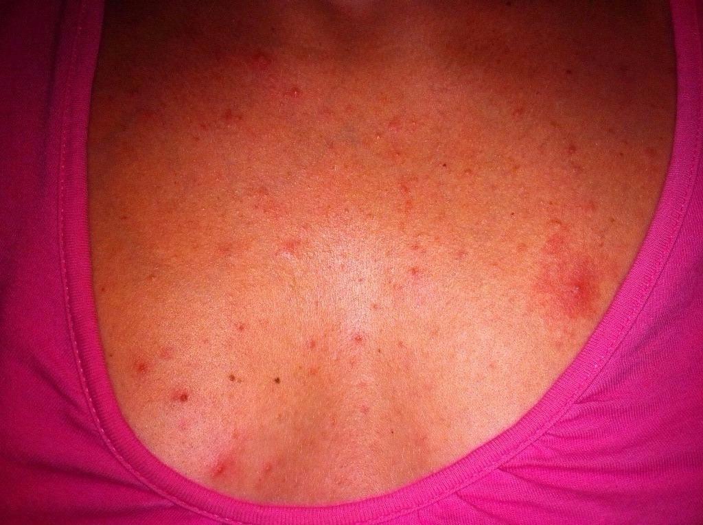 Красные пятна на груди у женщин