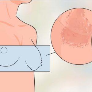 Красные пятна на груди и возле: обзор причин и методов лечения