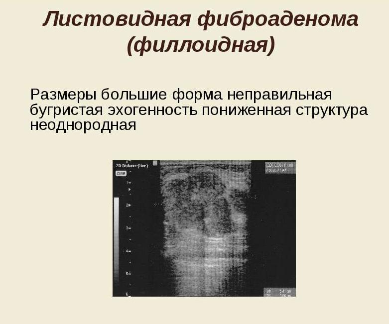 Филлоидная фиброаденома молочной железы