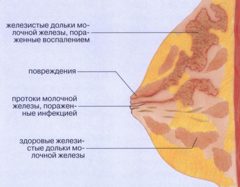 Цистит лечение кормящей матери Лечим печень