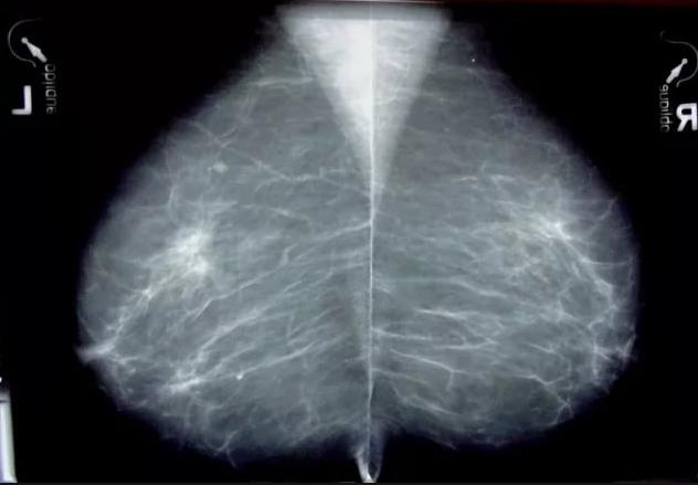 Локальный фиброз молочной железы