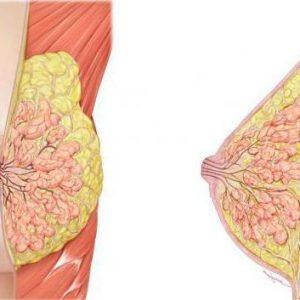 Что такое фиброз молочной железы: виды, симптомы, методы лечения