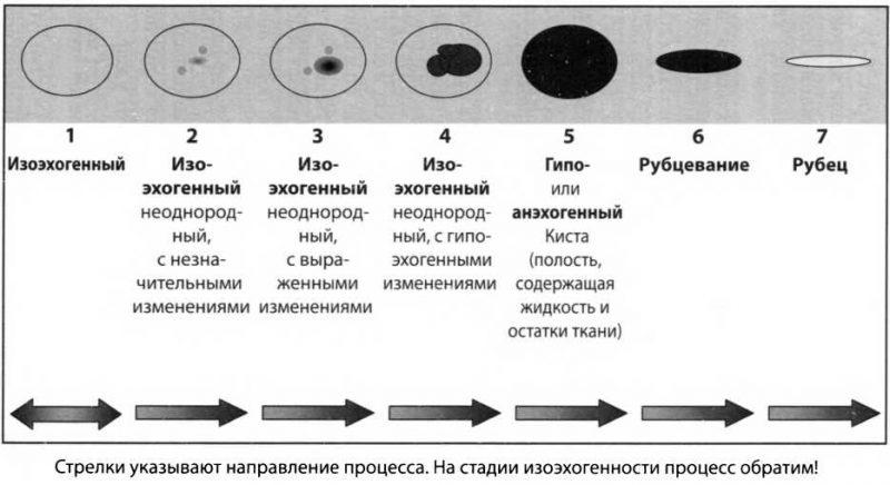 гипоэхогенное образование