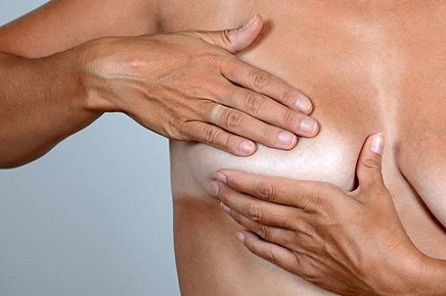 инволютивные изменения молочных желез