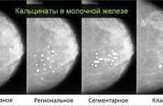 Что означает появление кальцинатов в молочной железе