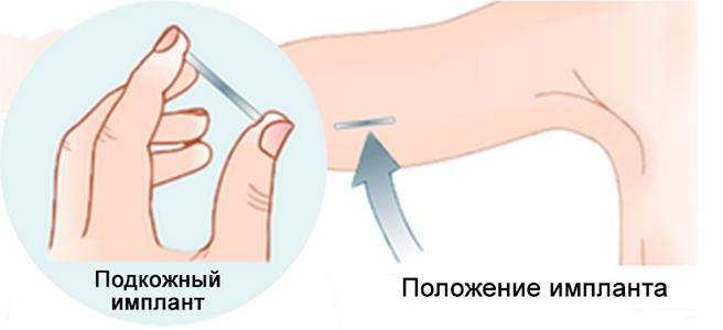 Подкожные импланты