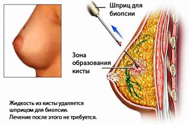 Пункция кисты молочной железы