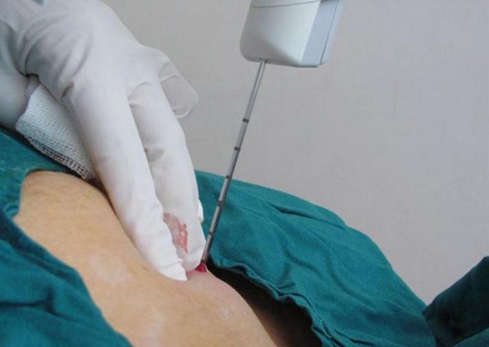 трепан – биопсия молочной железы
