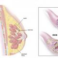 инвазивный рак молочной железы