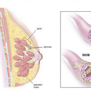 Инвазивный рак молочной железы: классификация, прогноз, методы лечения