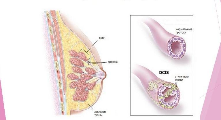 Морфологическая диагностика инвазивного протокового рака молочной железы