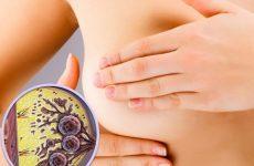 Карцинома молочной железы: факторы риска, диагностика и лечение