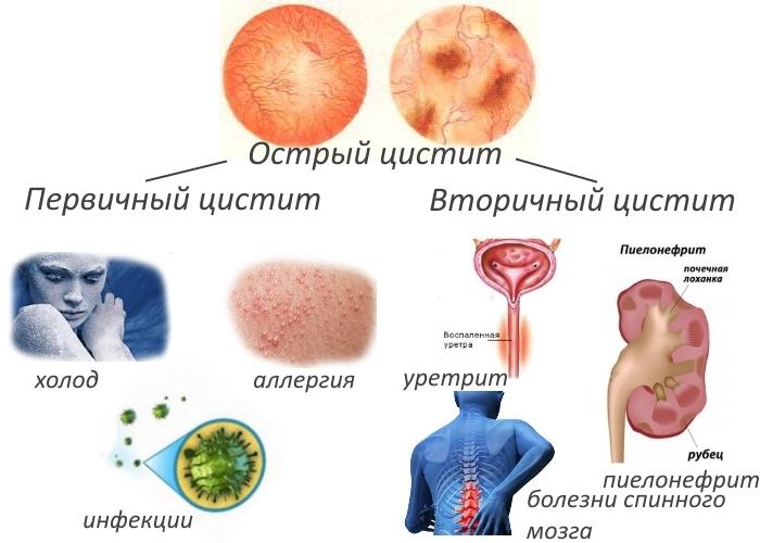 Лечение цистита при гв