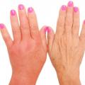 лечение лимфостаза руки после удаления молочной железы