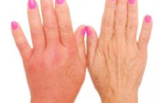 Все о лимфостазе после мастэктомии: причины, стадии, лечение, профилактика
