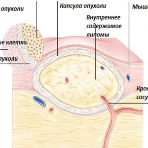 Липома груди: что это такое и как ее лечить