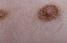 Третий сосок — безобидная патология или опасный признак?