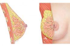 Все о патологиях железистой ткани молочной железы: гиперплазия и железистая мастопатия