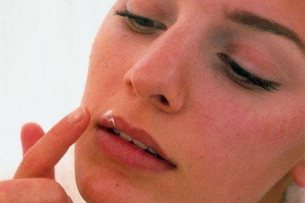 Лечение герпеса во время грудного вскармливания