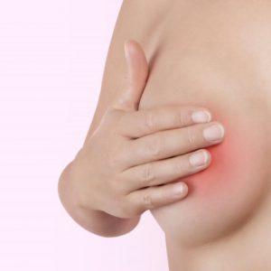 Что такое аденома молочной железы и как ее лечить