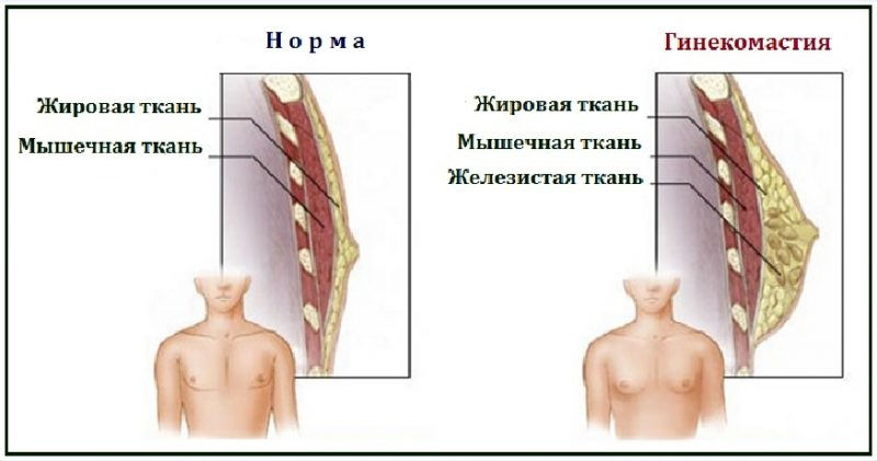 Аденома грудной железы