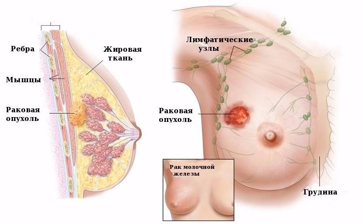 Лимфоузлы на грудине у женщин