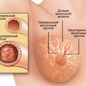 Что такое дуктэктазия молочной железы и как ее лечить