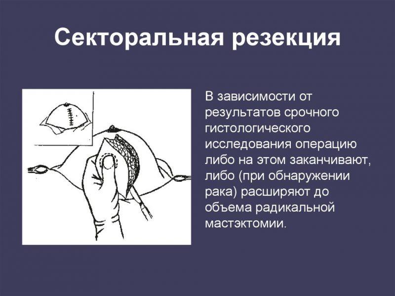 Секторальная резекция фиброаденомы