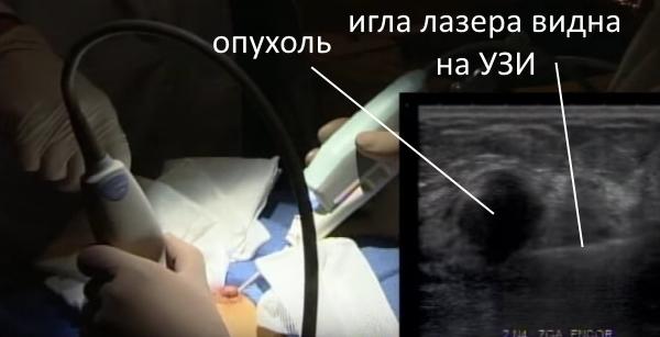 Лазерное удаление фиброаденомы