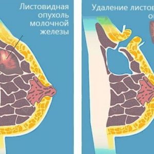 Нужно ли удалять фиброаденому молочной железы