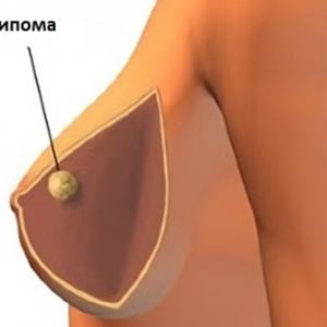 Что такое фибролипома и липофиброма груди: как их лечить