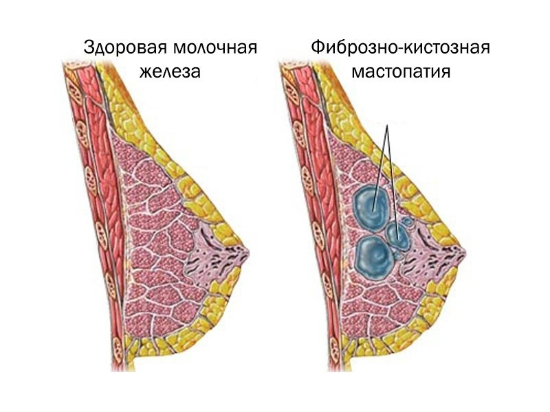 Лечение кисты молочной железы народными средствами