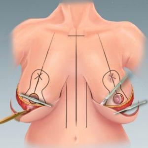 Коррекция груди: какие способы существуют