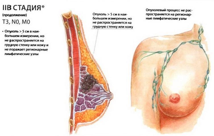 лечение рака молочной железы 3 стадии народными средствами