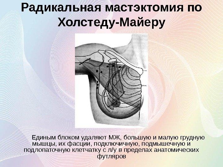 Мастэктомия