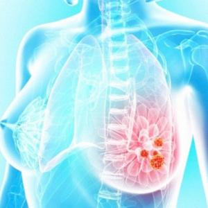 Нелактационный мастит: причины, симптомы, лечение