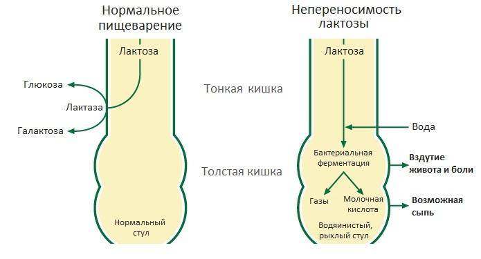 Непереносимость лактозы у грудничков