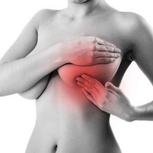 Очаговое образование молочной железы: симптомы, причины, методы лечения