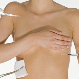 Подтяжка груди без имплантов: обзор методов с фото до и после