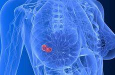 Все о раке груди 3 степени: симптомы, лечение, прогноз выживаемости