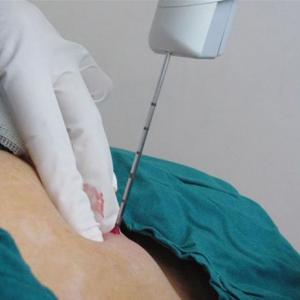 Что такое трепан-биопсия груди, и когда она нужна