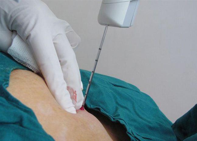 Трепан биопсия молочной железы что это такое